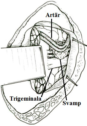 Blodkärl skild från trigeminusnerven