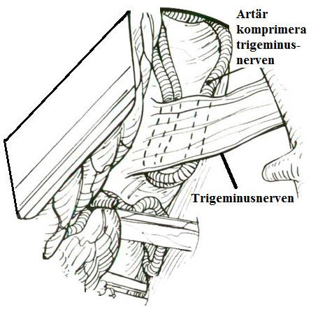Trigeminusnerven kompression av en artär i trigeminusneuralgi
