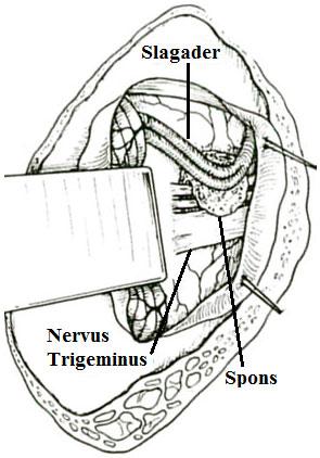 Bloedvat los van de nervus trigeminus