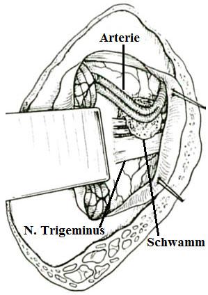 Blutgefäß getrennt vom Trigeminus