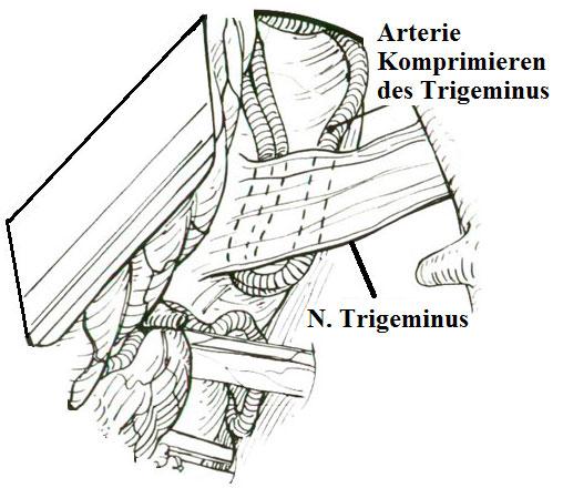 Trigeminus Kompression durch eine Arterie in der Trigeminusneuralgie