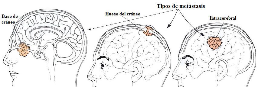 Tipos de tumores cerebrales metastásicos
