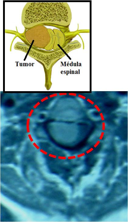 Tumor intradural extramedular