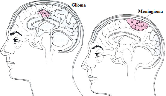 Types of primary brain tumours