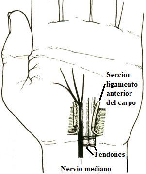 Sección ligamento anteiro del carpo