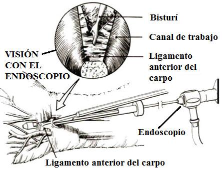 Tunel carpiano endoscópico