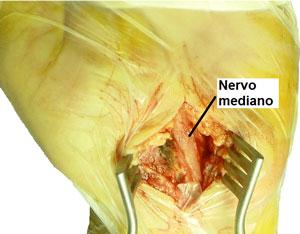 Immagine chirurgico dopo la sezione completa del legamento crociato anteriore del carpo