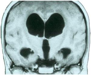 Imagen de RM en corte coronal de hidrocefalia obstructiva secundaria a tumor de región pineal