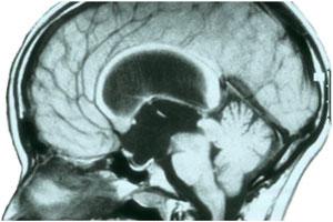Imagen de RM en corte sagital de hidrocefalia obstructiva secundaria a tumor de región pineal